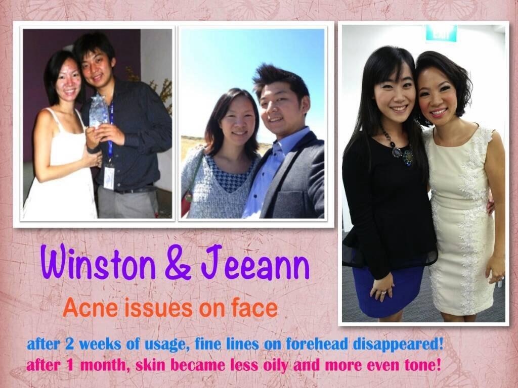 jeunesse-reserve-acne2